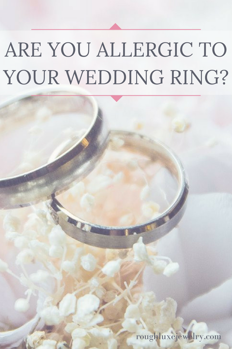 Are you allergic to your wedding ring? Vintage inspired