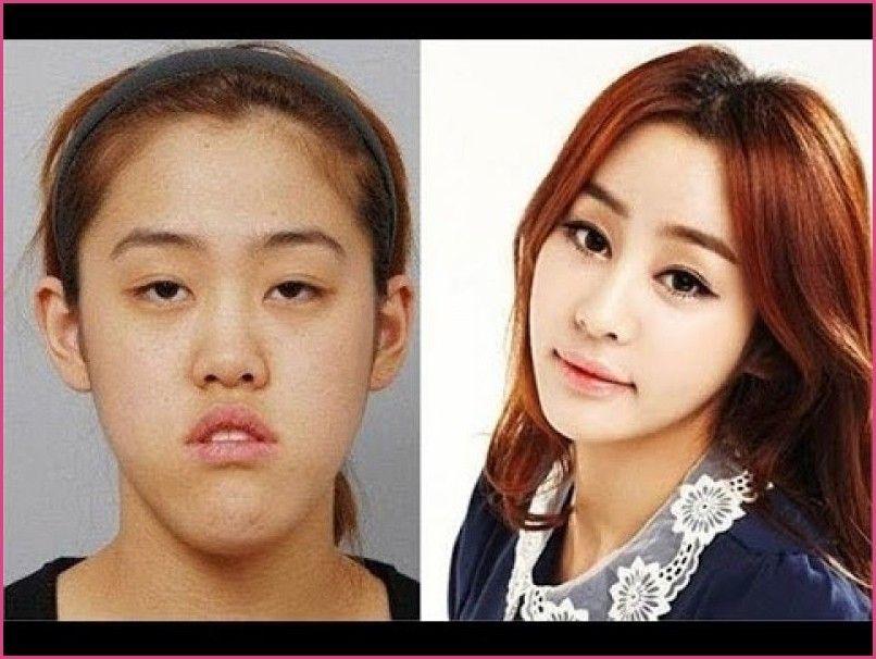 Korean Family Plastic Surgery Korean Plastic Surgery Shocking