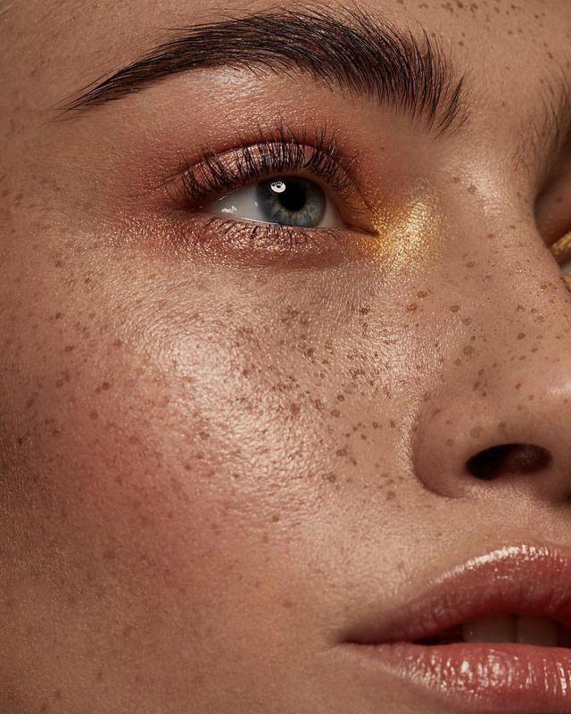 Фото можно ли убрать веснушки на лице