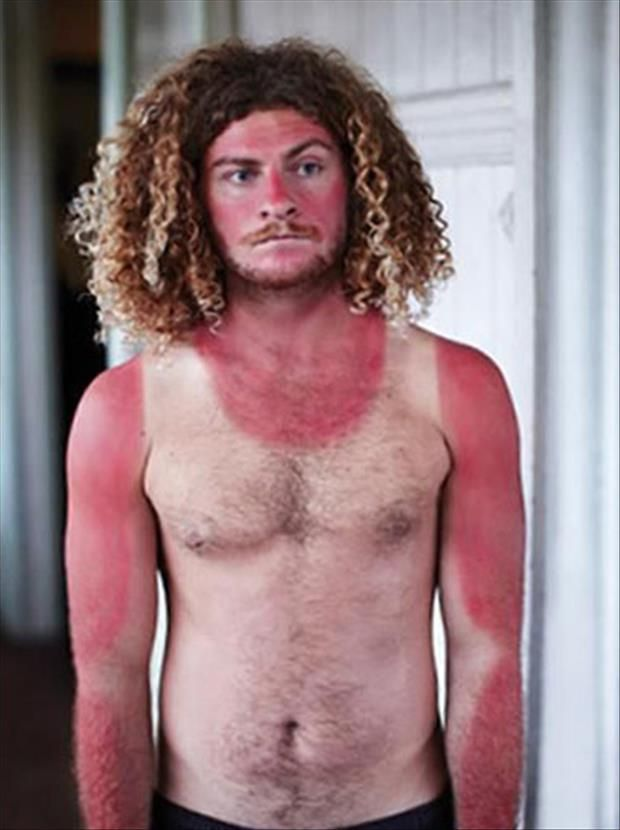 24 People Who Should Have Stayed Out Of The Sun Sunburn – God's ...