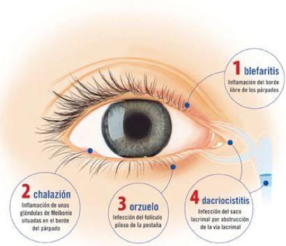 lagrimales obstruidos sintomas de diabetes