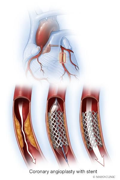 Learn About Coronary Angioplasty And Stents (Video)