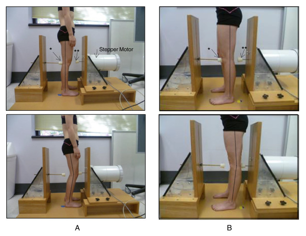 Do hypermobile joints lead to arthritis