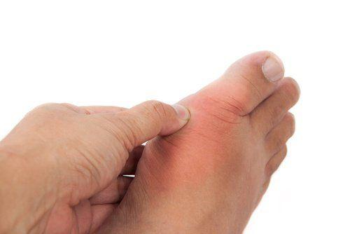 ENULA: una radice per combattere l'artrite reumatoide