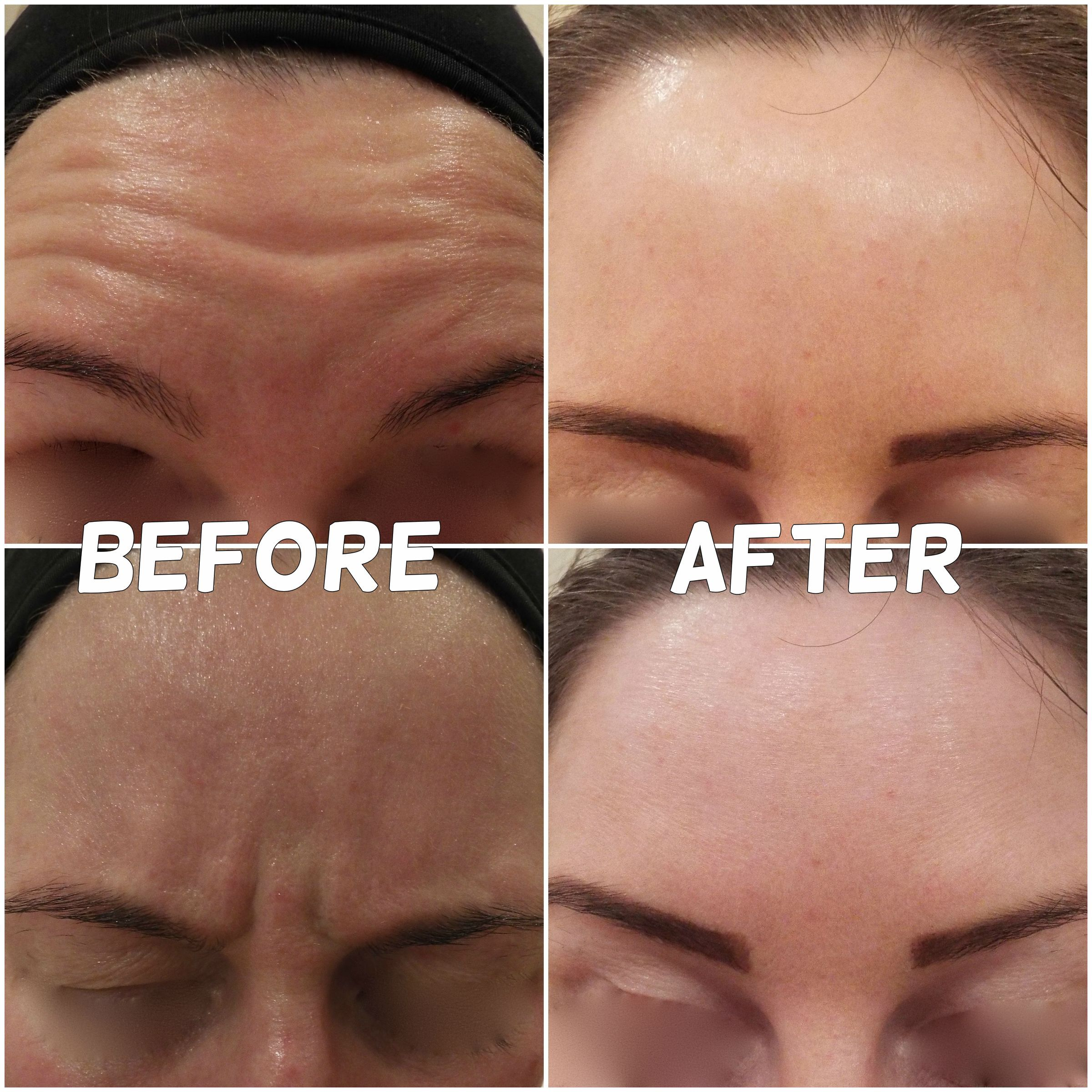 The after photos are taken 2 weeks after 2 areas of #Botox #feelyounger #wrinklefree