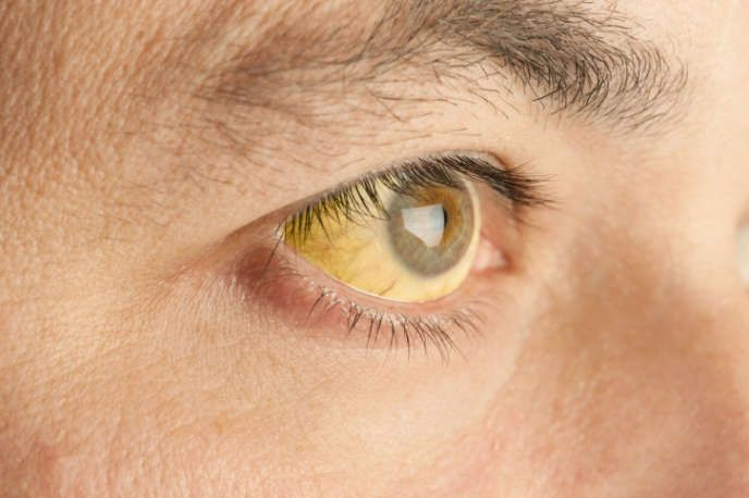 11 Things Your Eyes Are Trying To Tell You About Your Health - Answers.com