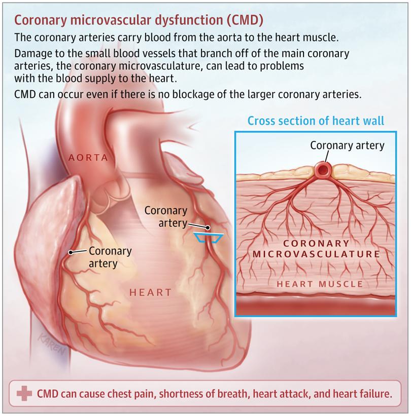 Testing for Coronary Microvascular Dysfunctio 1765da8cf588c8ae95a1628d20474178
