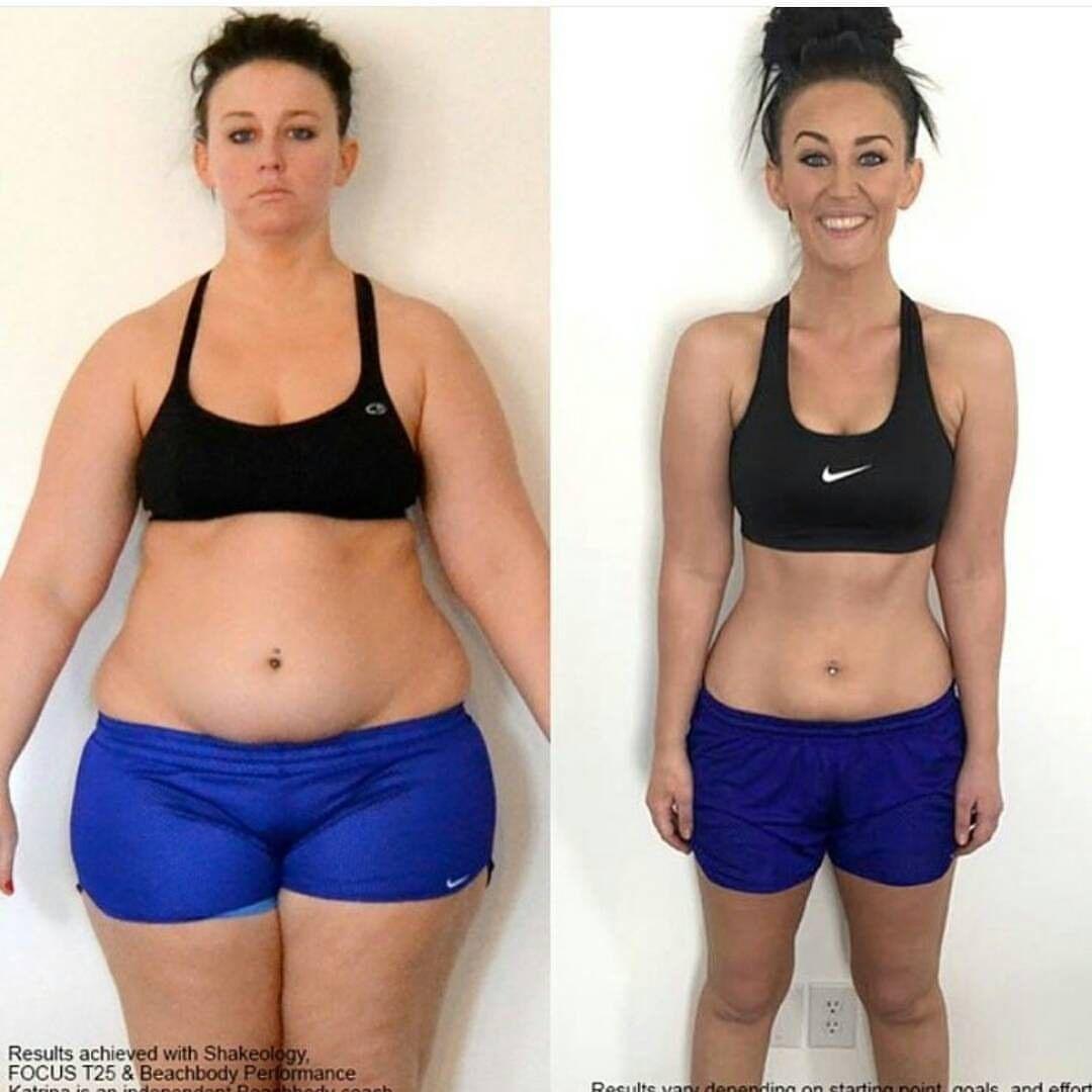camisol de slăbire a corpului cum a pierdut cineva în greutate
