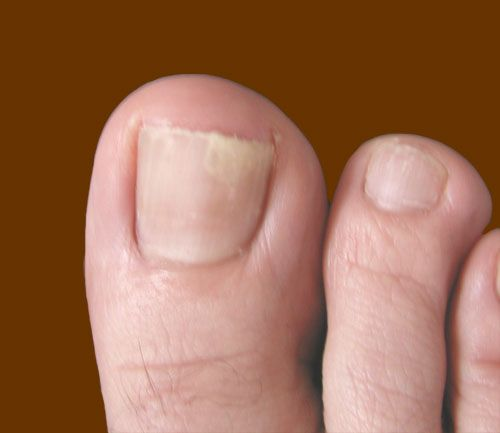 How To Treat Toenail Fungus: Keep Your Feet Damp. Donu0027t Wash Your Feet Or  Change Socks For A Month. There, You Have Given The Fungus A Treat.