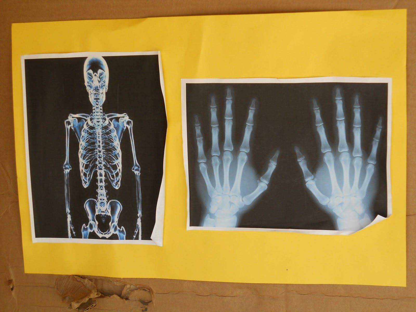 Note To Self X Ray Pictures For Dr Office Theme