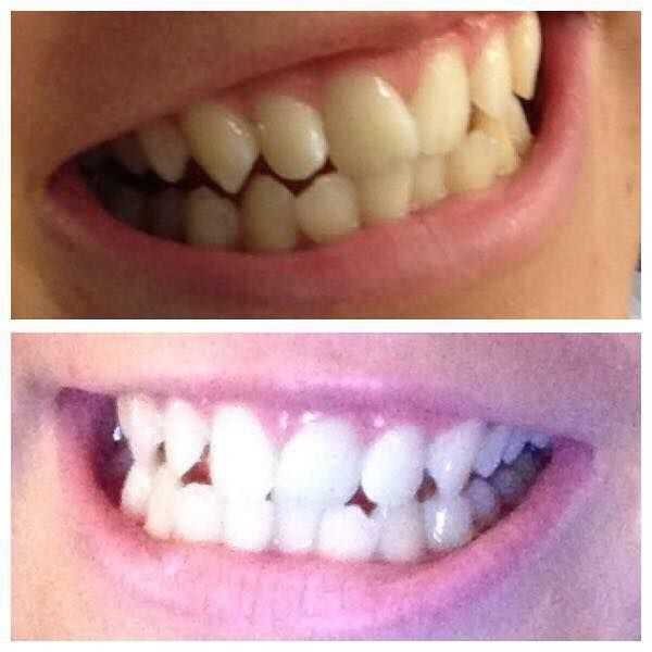 #ap24 #teeth #whiteningtoothpaste #dental #toothpaste #teethwhitening #nuskin #happy #smile