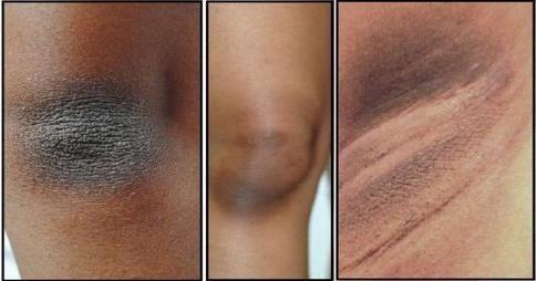 como eliminar manchas negras en la cara en un dia