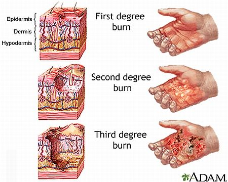 Holiday Cooking Gone Wrong How To Treat Skin Burns Burns Treatment Burn Injury Nursing Care Plan