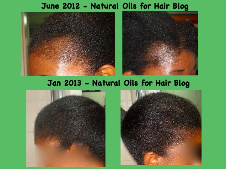 Regrow Bald Spots With Jamaican Black Castor Oil Hair