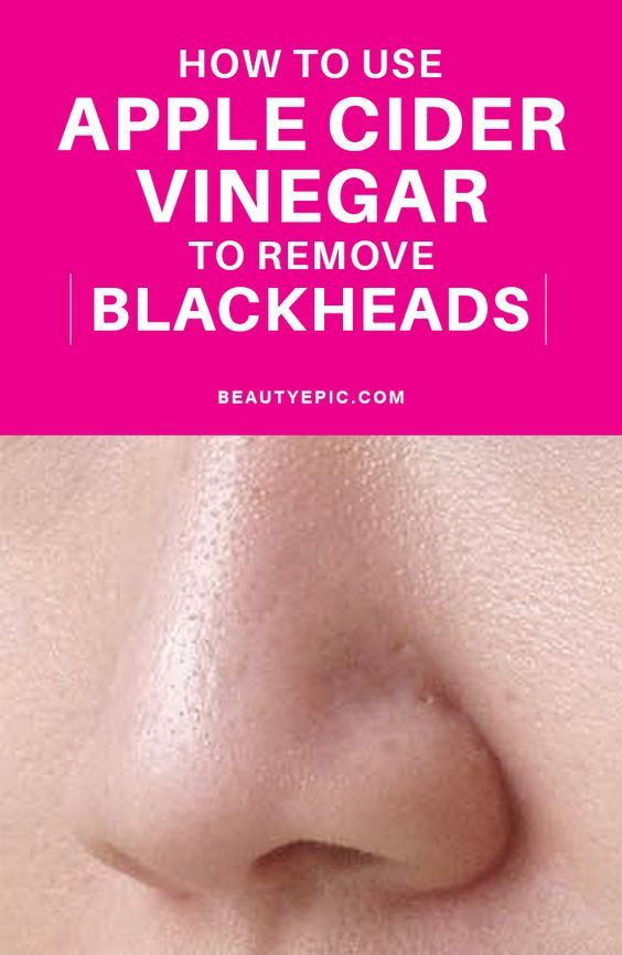 How to Remove Blackheads with Apple Cider Vinegar? | Acne