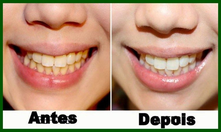 As 10 Receitas Caseiras Para Clarear Os Dentes Em 1 Minuto
