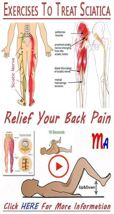 Exercises And Stretches To Cure Sciatica