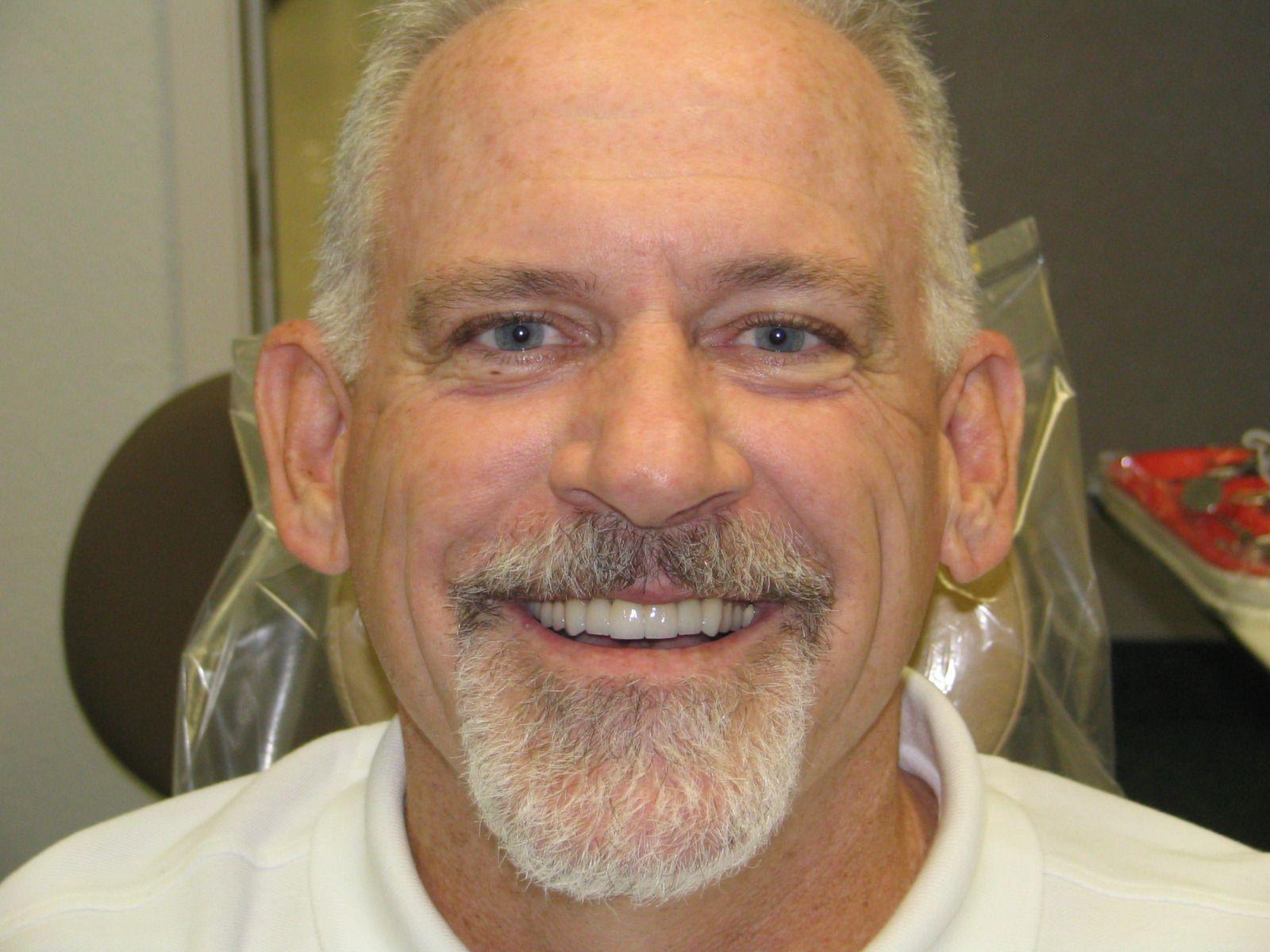 After cosmetic dentistry cosmetic dentistry veneers
