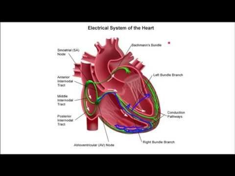 How To Recognize Left Bundle Branch Block Youtube Lbbb