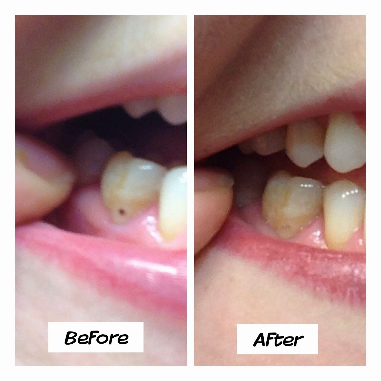 Young Living's Thieves Aromabright Toothpaste got rid of