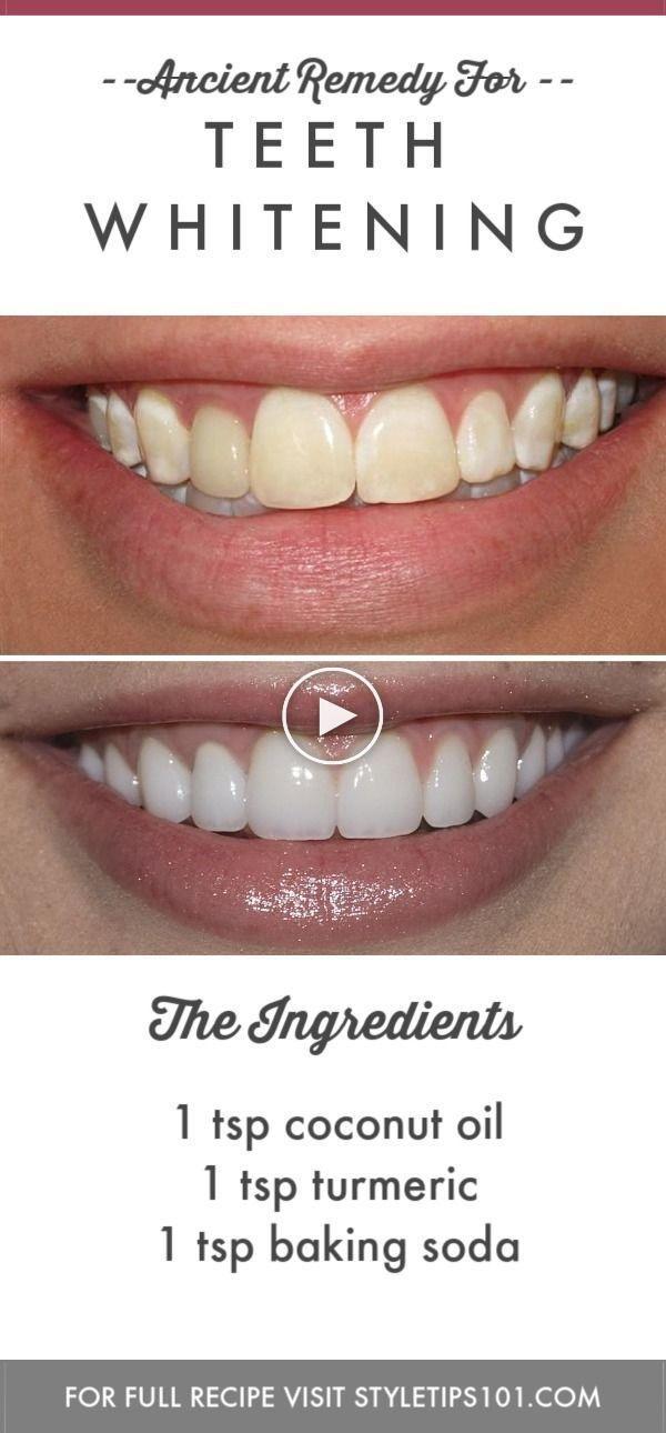 Remedio antiguo para el blanqueamiento dental moderno #maquillajebelleza #ideasdemaquillaje #maquillaje #antiguo #Antiguo #blanqueamiento #Blanqueamiento Dental dentists #dental #ideasd #maquillajebelleza #Moderno #para #Remedio