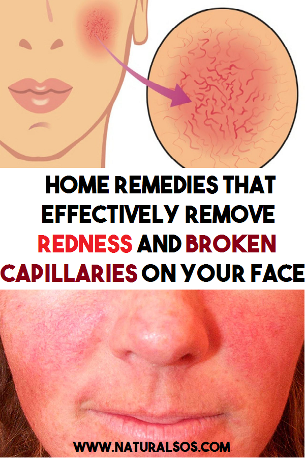 Home Remedies That Effectively Remove Redness And Broken