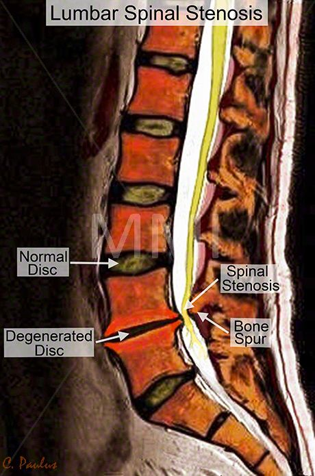 Annotated Color MRI Lumbar Spine Spinal Stenosis | back pain ...