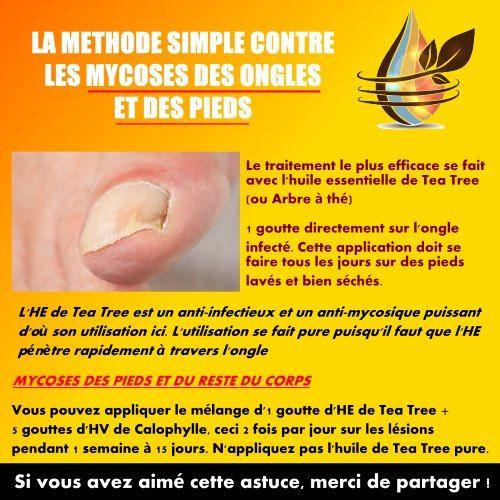 soigner mycose ongle pied huile essentielle
