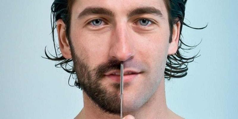 ثعلبة الذقن أحد أنواع الأمراض التي تصيب منطقة الذقن وينتج عنها ترك فراغ في منطقة معينة من الذق Hair Transplant Procedure Hair And Beard Styles Beard Transplant