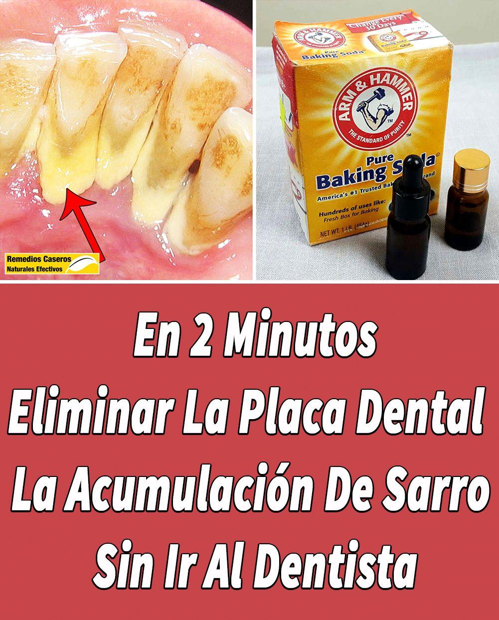 En 2 Minutos Eliminar La Placa Dental Y La Acumulación De Sarro Sin Ir Al Dentista Placas Dentales Enjuague Bucal Casero Blanqueamiento Dental Casero