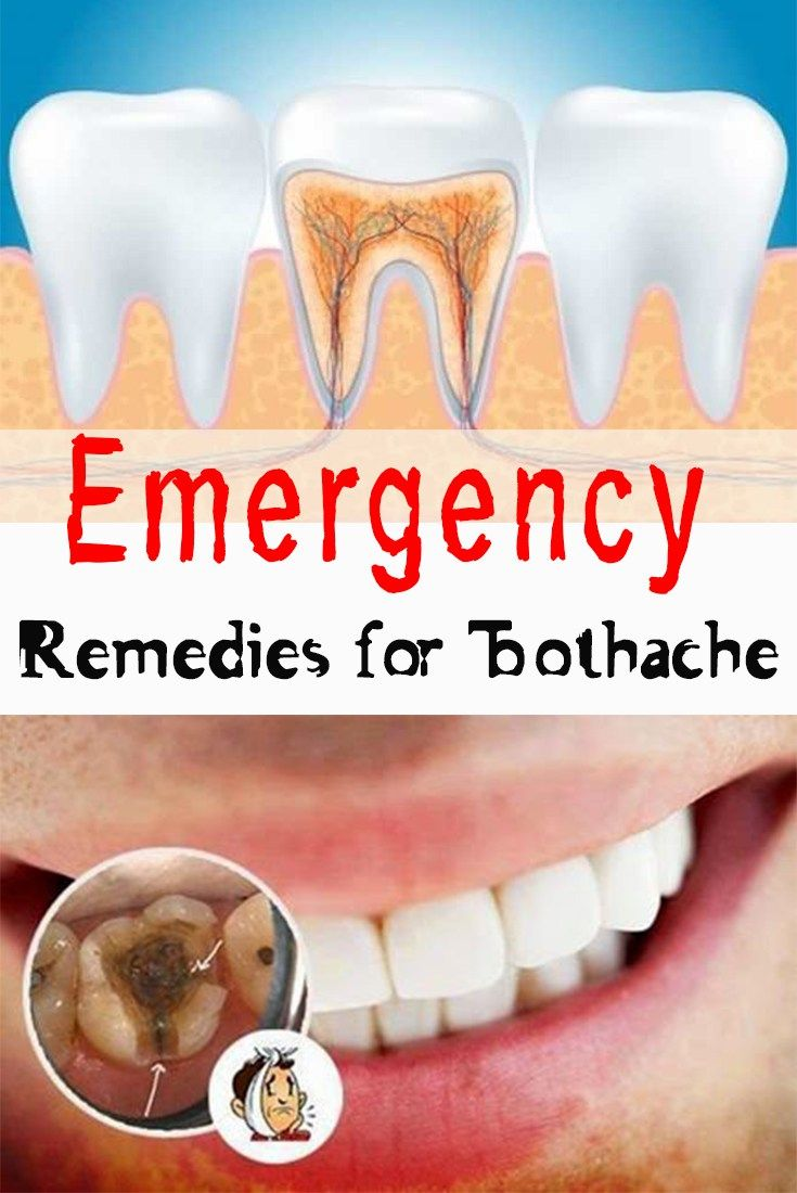 emergency remedies for toothache | homemade remedies | pinterest
