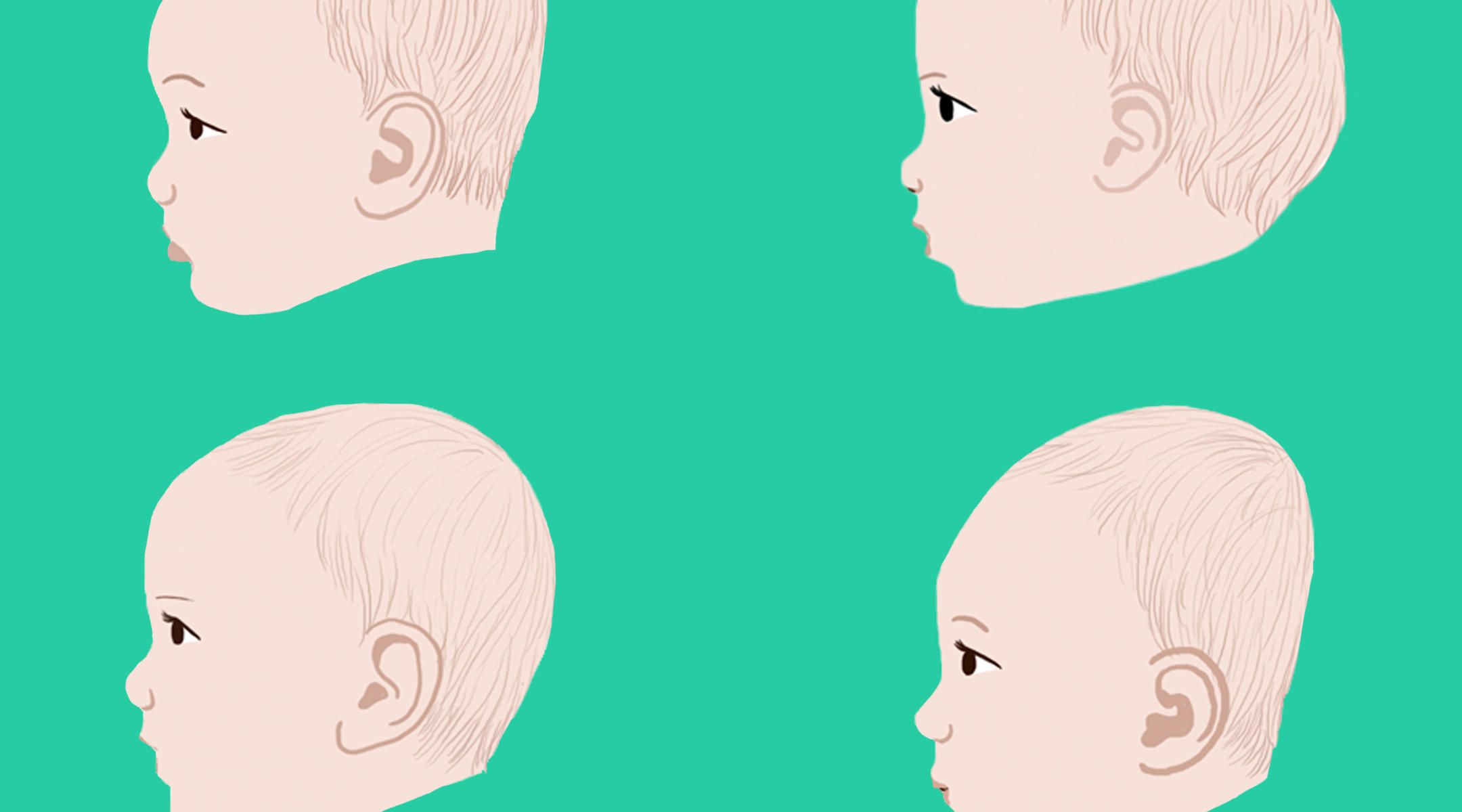 Plagiocephaly Flat Head Syndrome