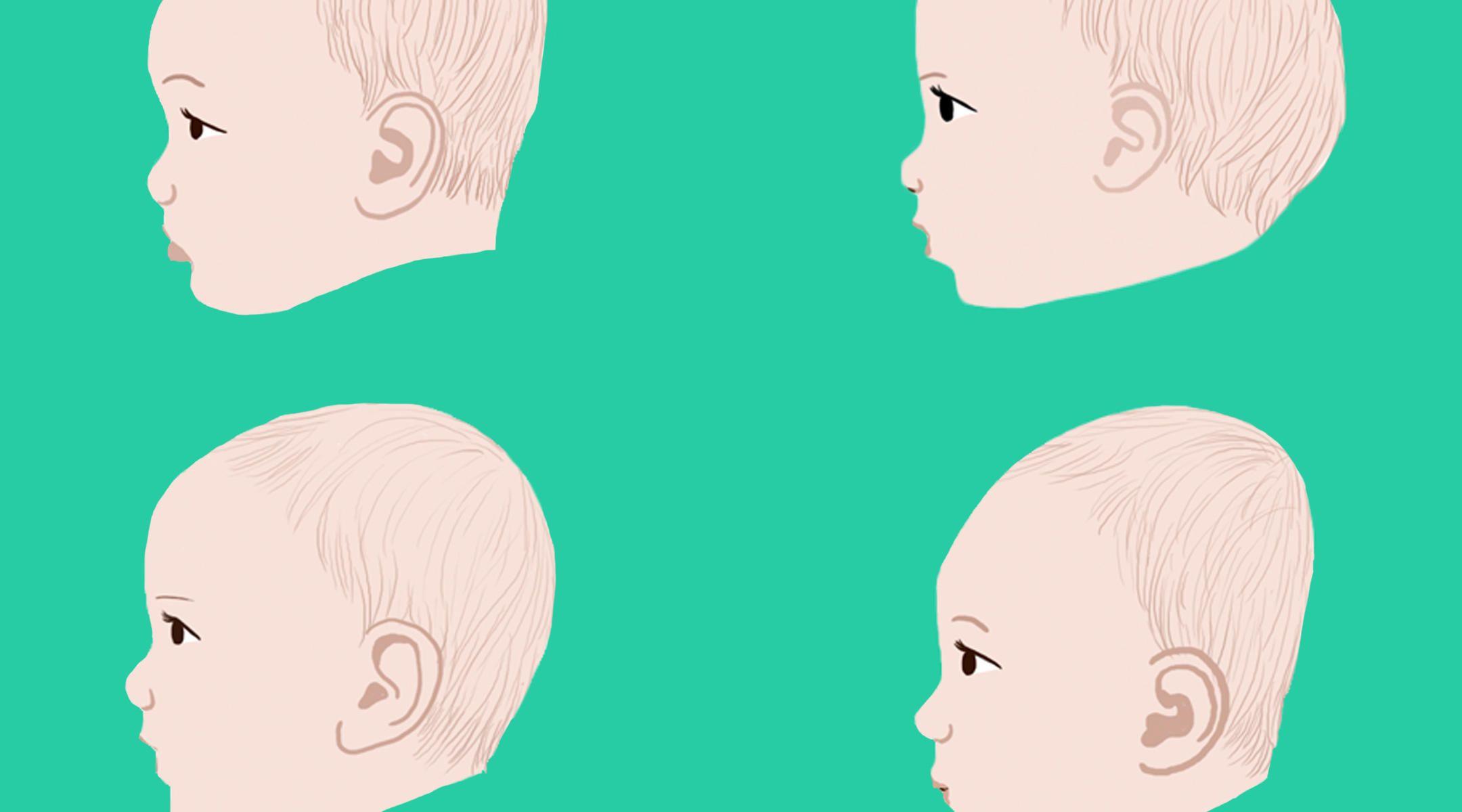 Plagiocephaly Flat Head Syndrome