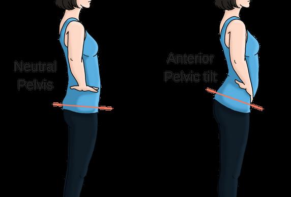anterior pelvic tilt vs neutral pelvis | Pelvic tilt, Easy yoga poses, Easy  yoga