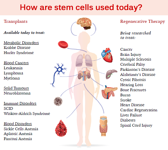 Find out how stem cells are being used today in the medicine and