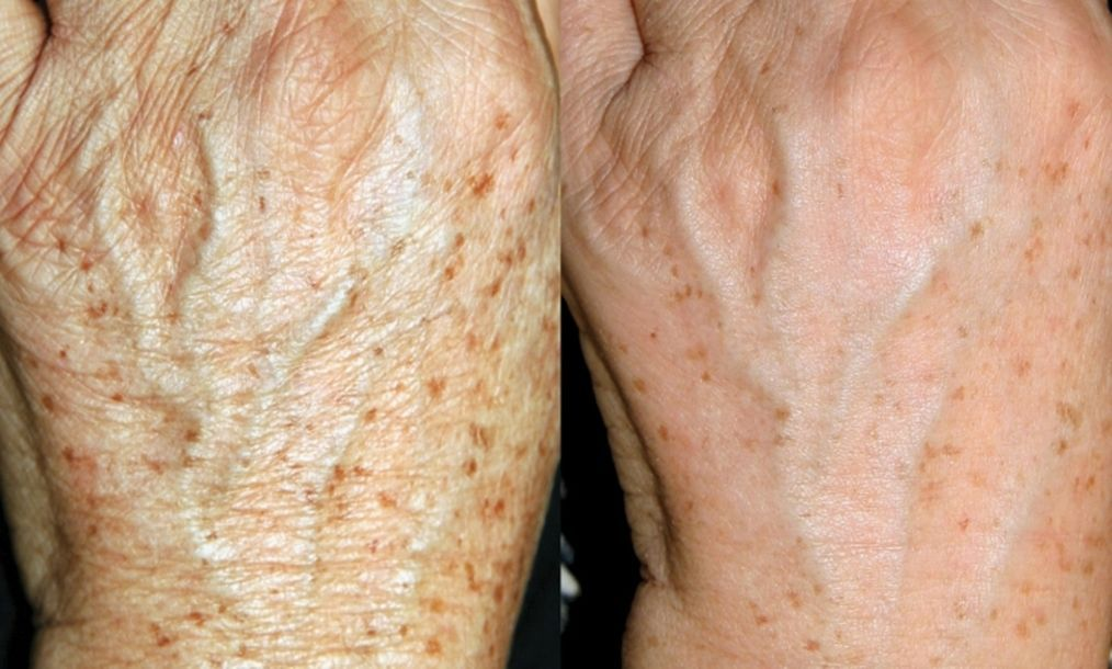 Erase brown spots on hands with sugar brown spots on