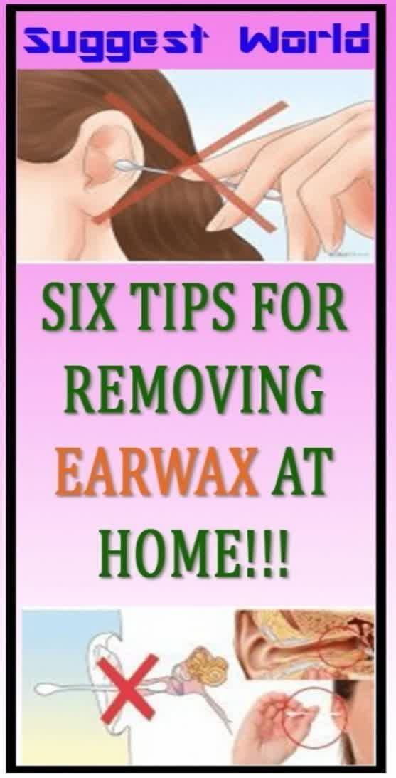 Six Tips For Removing Earwax At Home