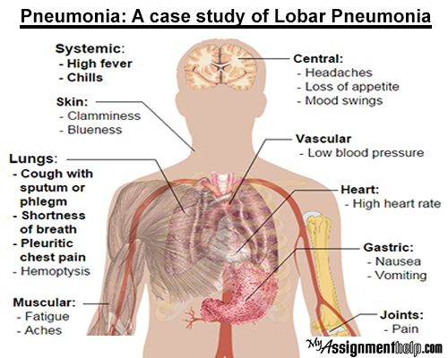 pneumonia is a common illness that currently affects 450 million, Human Body
