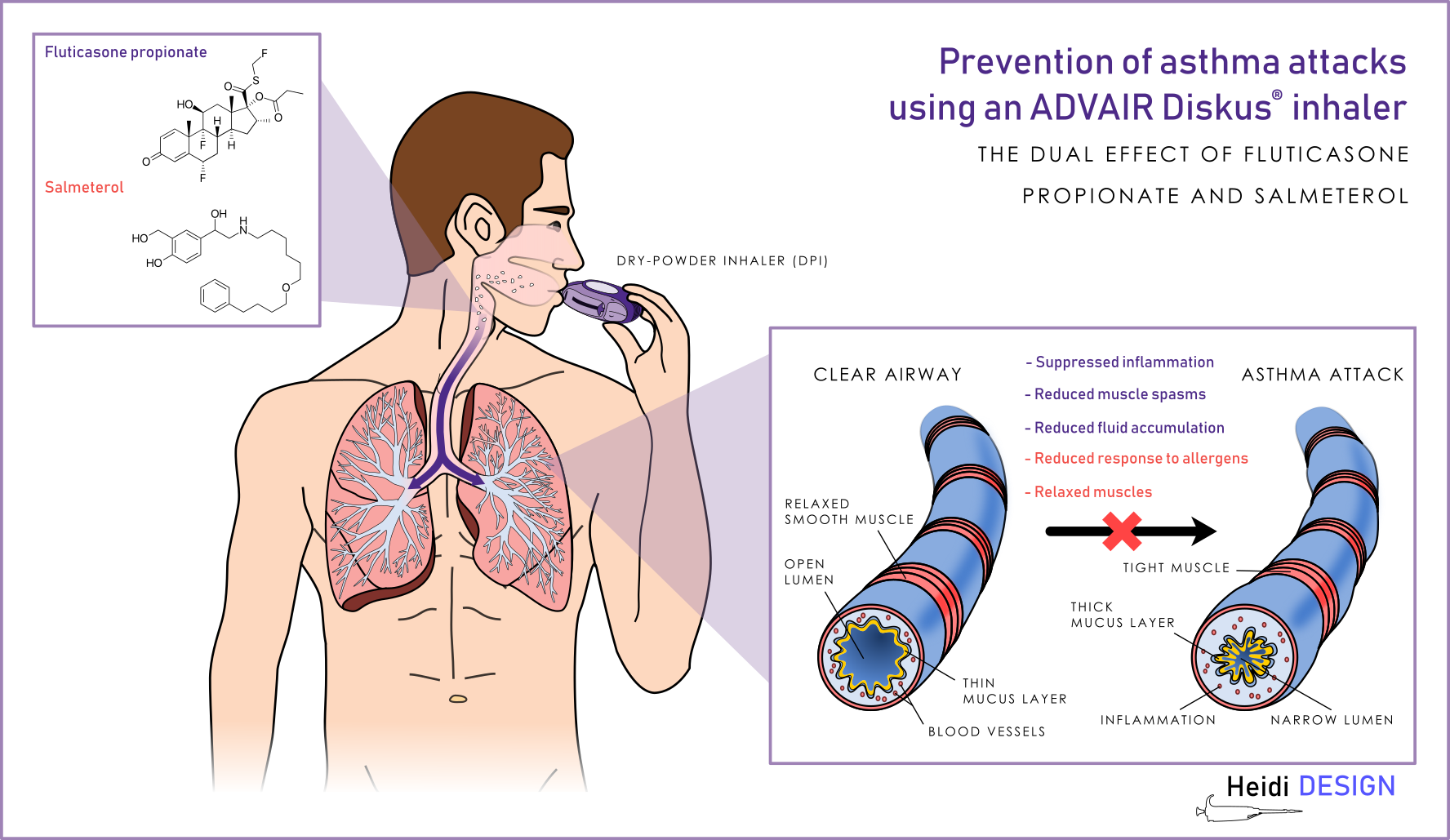 Scientific Design Prevention Of Asthma Attack Using An Advair Diskus Inhaler By Heidi Design Bronchitisfacts Asthma Attacks Cough Treatment Asthma