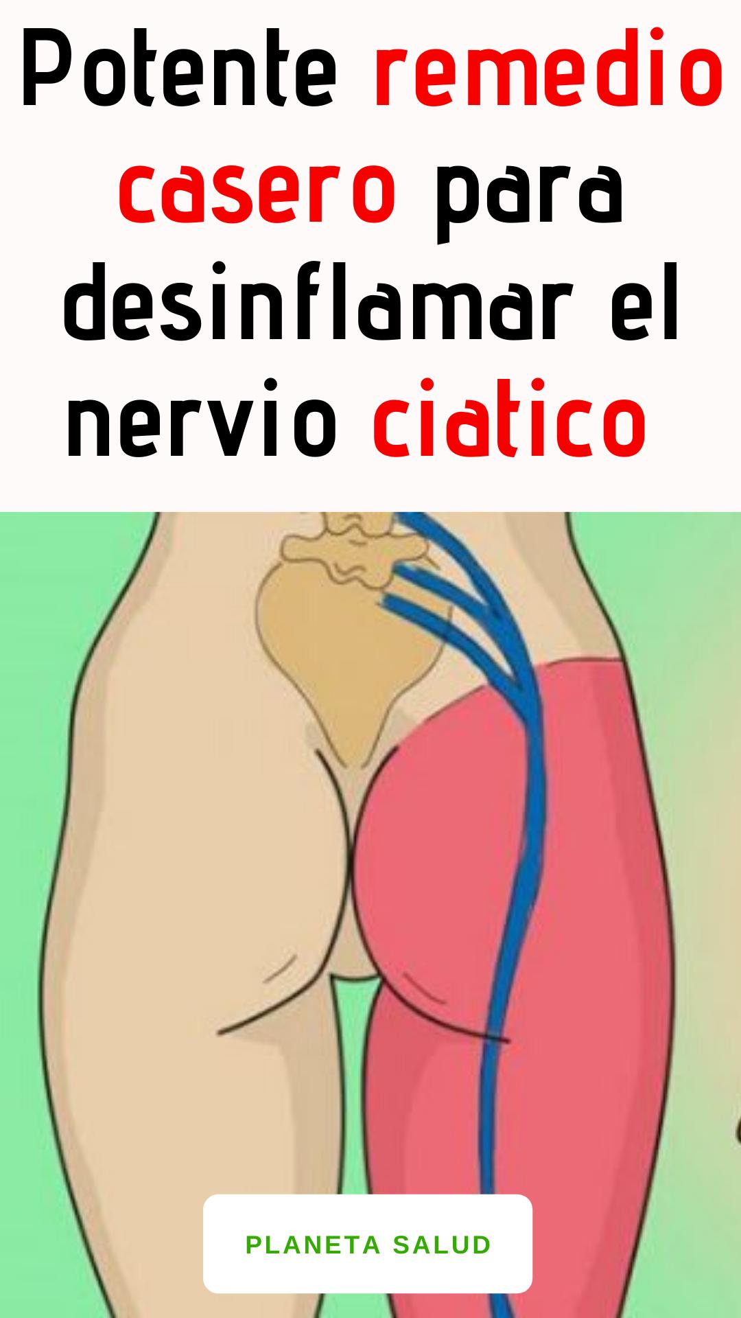 Potente Remedio Casero Para Desinflamar El Nervio Ciatico Health Fitness Health Health Trends