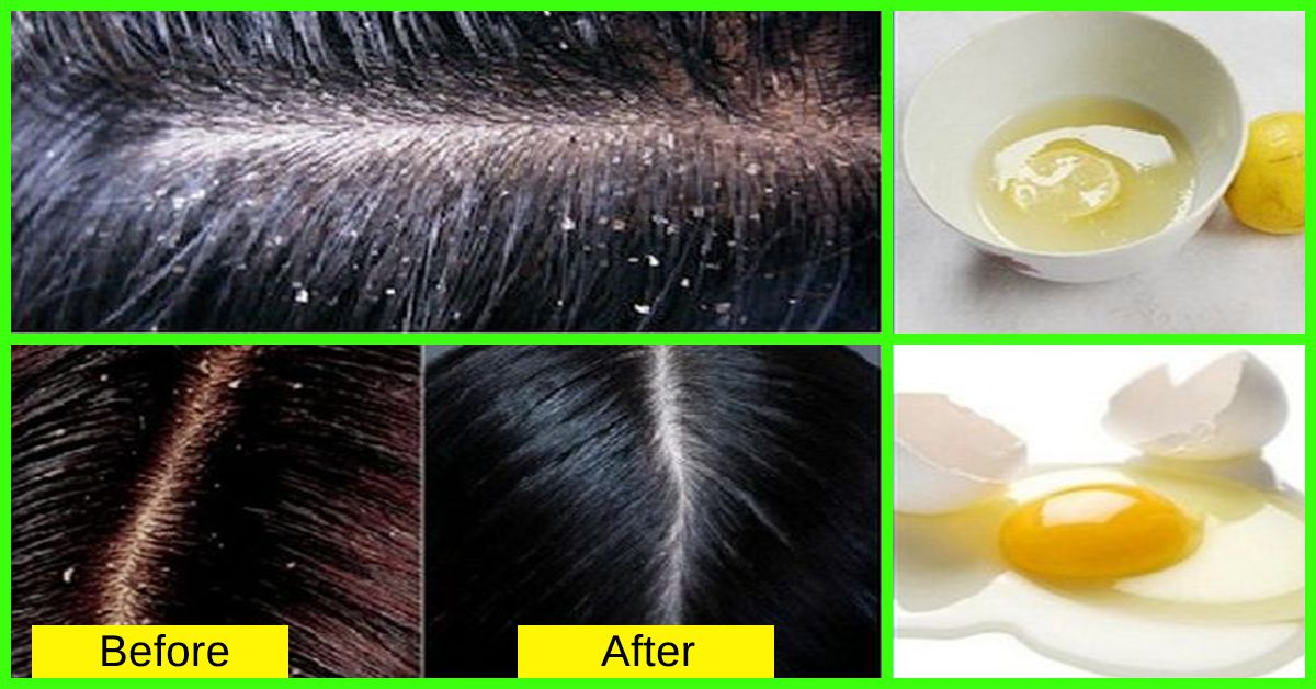 How To Get Rid Of Dandruff Fast Dandruff How To Remove Dandruff How To Cure Dandruff