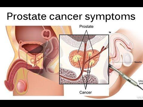 webmd de tratamiento del cáncer de próstata