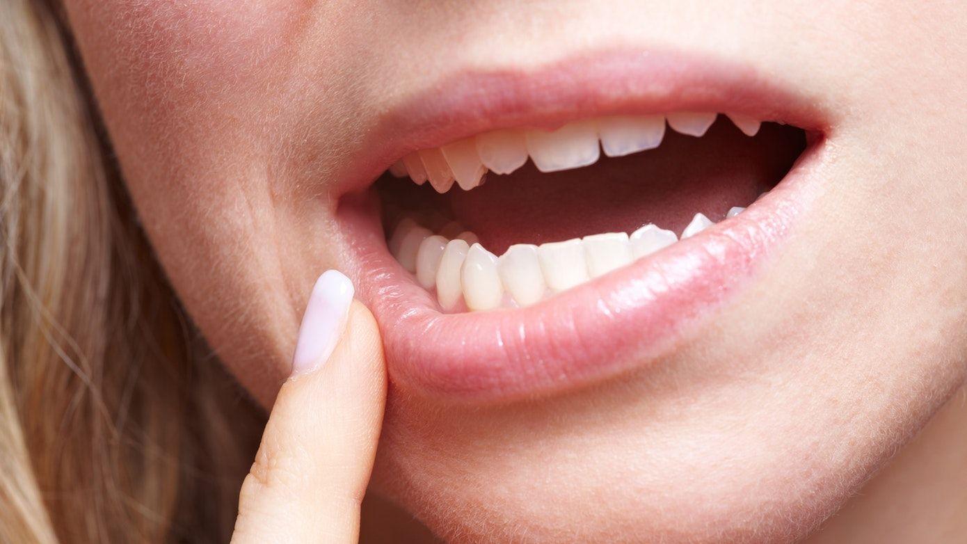 17cf1cf922bb471a174ee84108421e2e - How To Get Numbness Out Of Mouth After Dentist