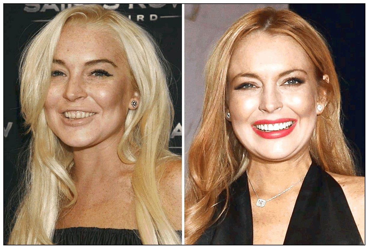 101 celebrities before and after plastic surgery | proyectos que