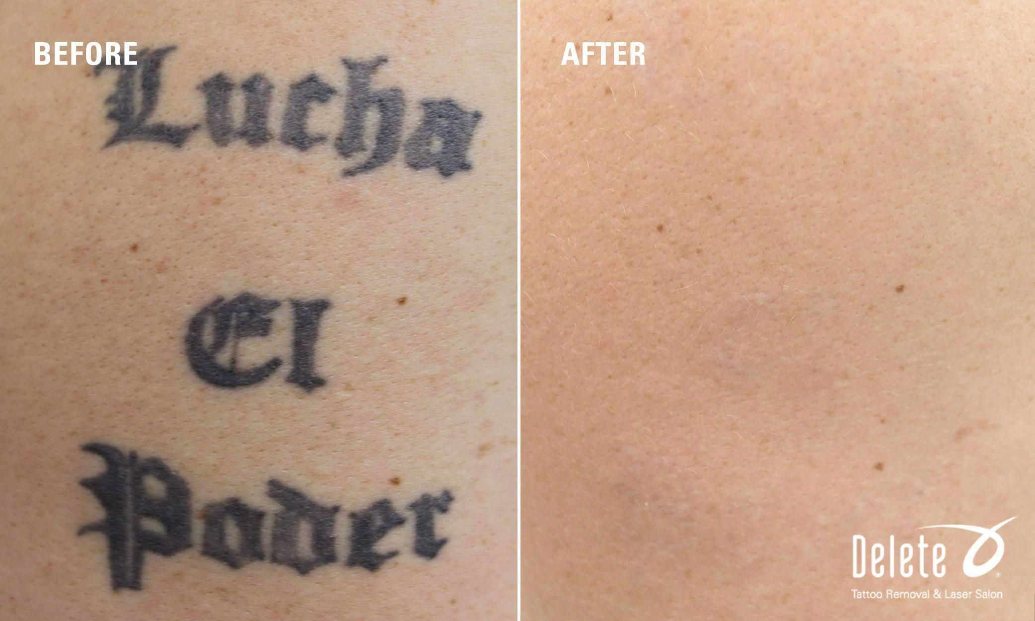 Happy Before After Monday Here Is Another Powerful Result Achieved At Delete With Our Picoway Tatto Tattoo Removal Results Tattoo Removal Cost Laser Tattoo