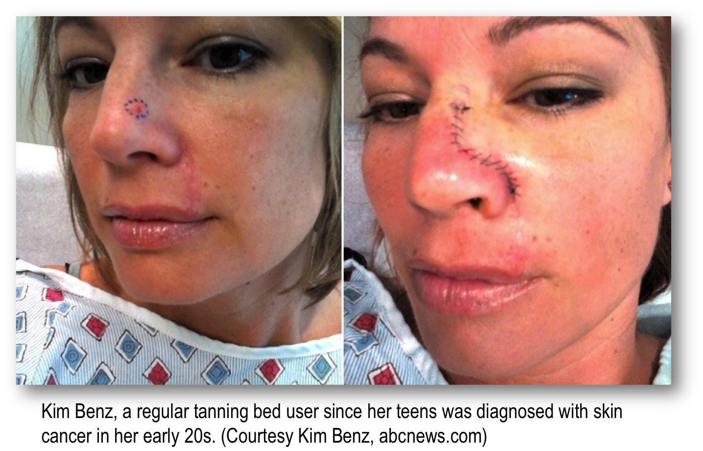 Basal cell carcinoma on nose of a young woman who used