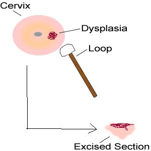 LEEP Procedure to Treat Cervical Dysplasia