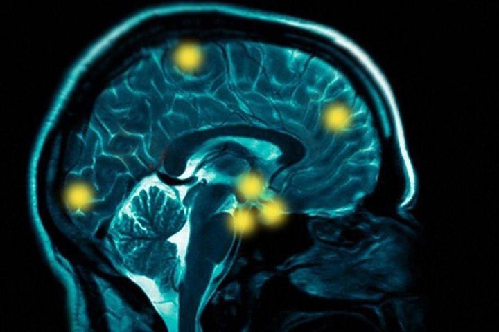 Alzheimer's is a devastating degenerative brain disease ...