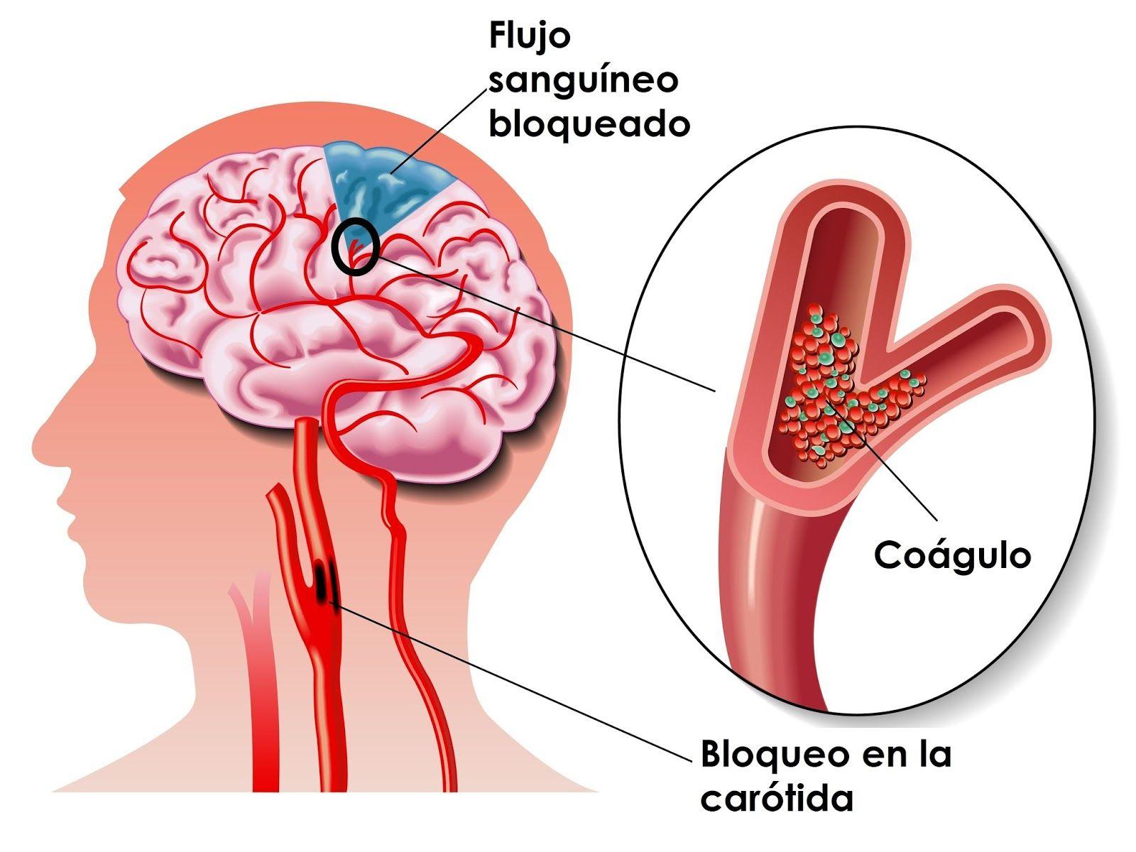 Consejos Utiles Positivos: Conoce las señales de un derrame cerebral