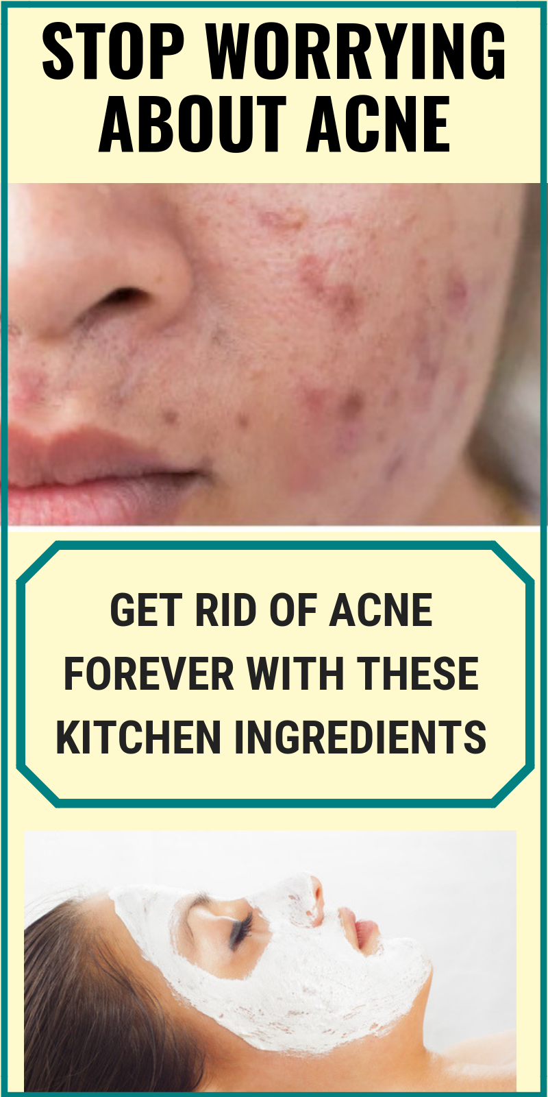 Home Remedies To Treat Comedonal Acne Garlic For Hair Growth Comedonal Acne Acne